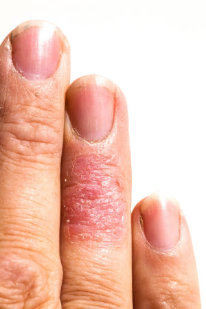 A skin prone to ecm / eczema.
